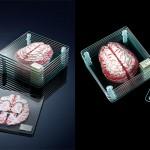 3D možgani