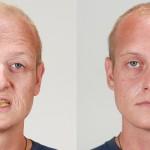 Kaj kajenje naredi našemu obrazu