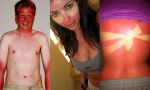 Sončne opekline