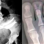 Ko misliš, da si videl že vse: tukaj so še bizarni rentgenski posnetki!