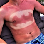 """Tatuji iz sončnih opeklin"": poletni trend ali norost?"